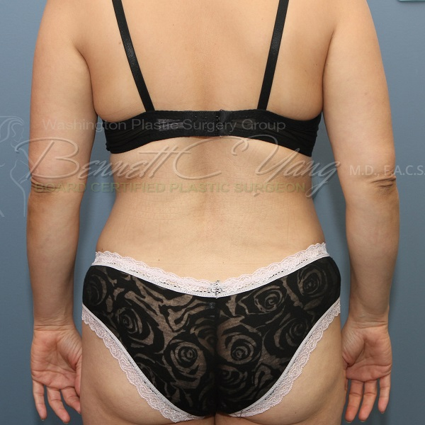 Back Fat Removal Liposuction Plastic Surgery Payment Plans