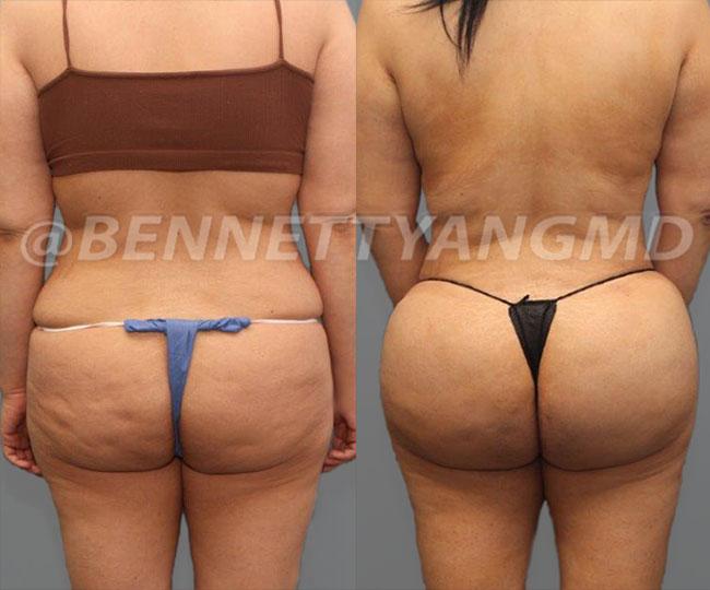 Starting $254 /mo Brazilian Butt Lift Payment Plan