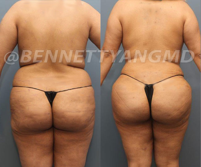 Starting $254 /mo Brazilian Butt Lift Payment Plan