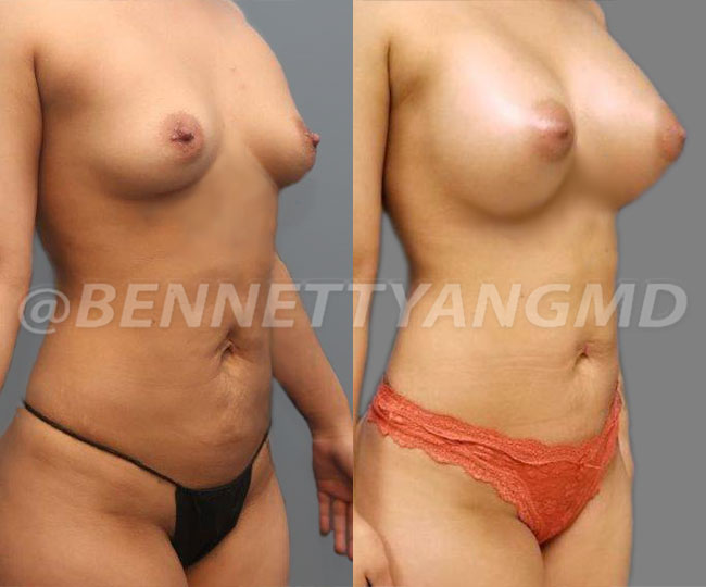 Pat1-breast_before_after_2d1