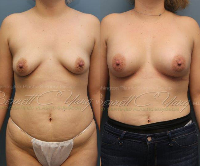 Pat13-breast_before_after_2d1