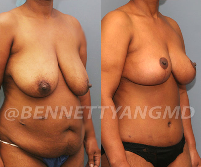 Tummy-Tuck-with-Lipo-Patient-4d-before-after-271x300 (1)
