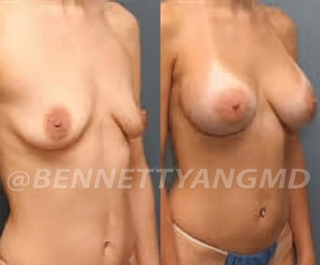 Yang-Breast-Aug-Pt-2-before-after-side-b-(2)