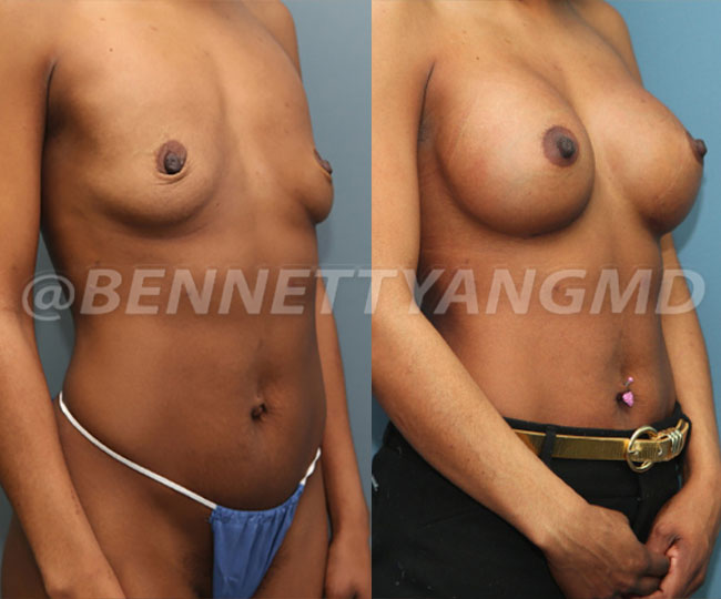 breast_aug_pt6_before-after_B