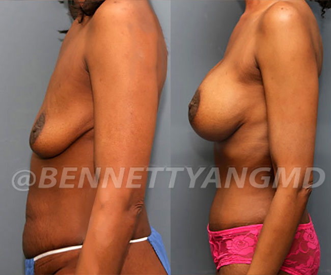 full-tummy-tuck-patient-before-after-17a