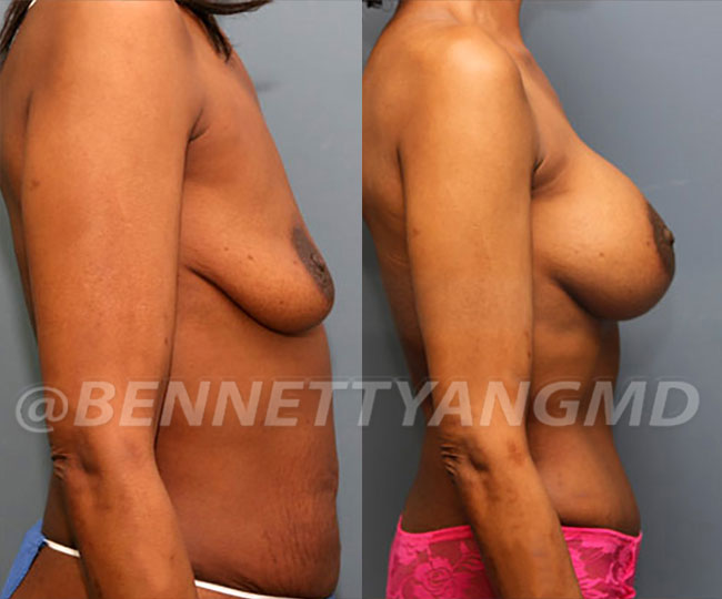 full-tummy-tuck-patient-before-after-17c
