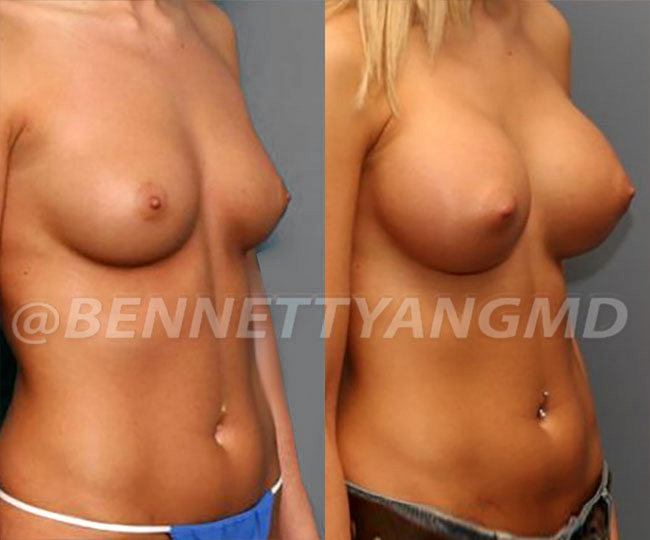 yang-silicone-before-after-2b1