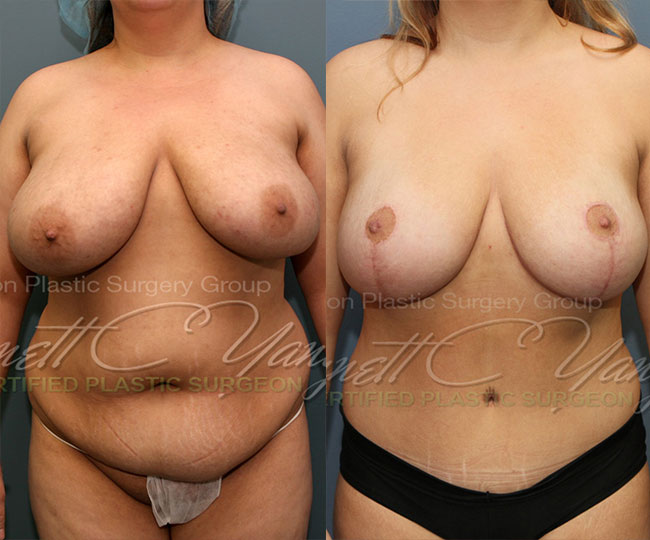 20121116_0559.breastreduction.tummytuck.mommymakeover.wm_before_after