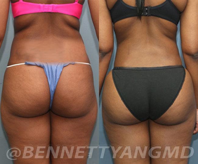 Starting $236 /mo Brazilian Butt Lift Payment Plan