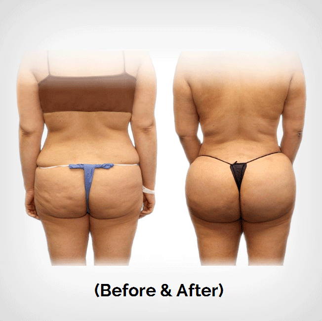 Brazilian Butt Lift Plastic Surgery Payment Plans