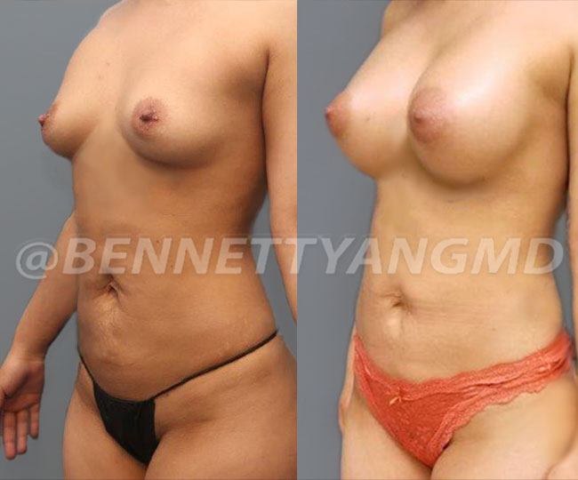 Pat1-breast_before_after_2d4