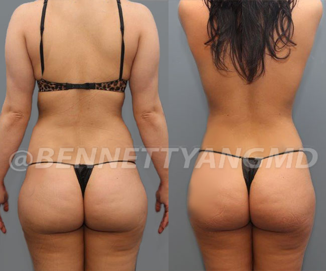 Starting $254/mo Brazilian Butt Lift Payment Plan