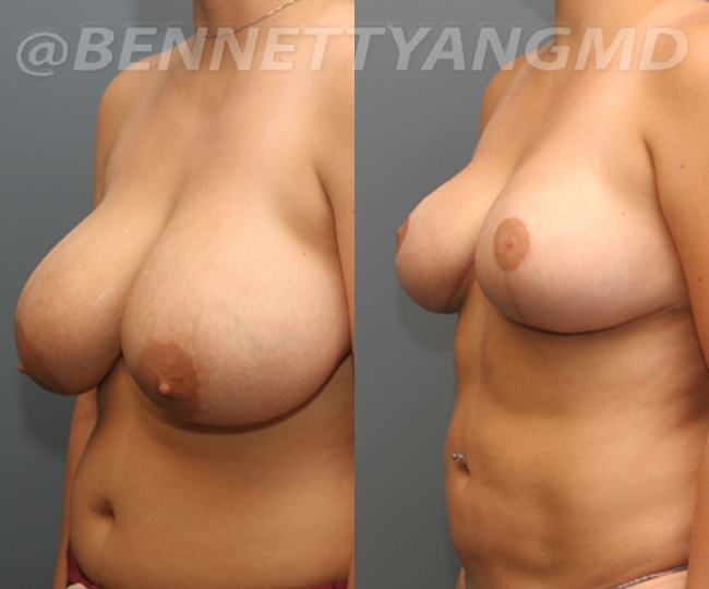 breast_aug_pt6_before-after_08n