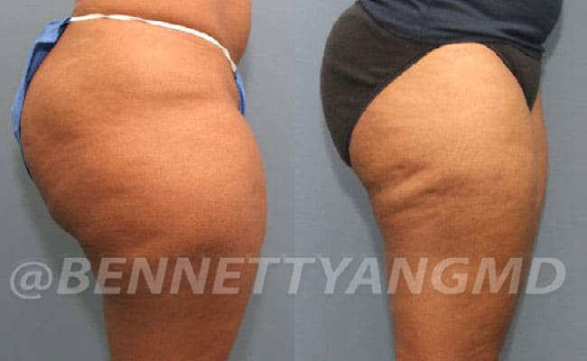thigh-before_after-4a