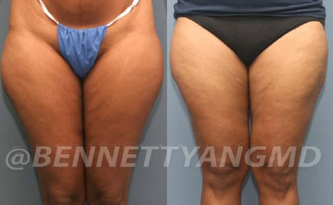 thigh-before_after-7a