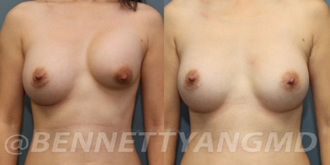 thumbs_implant-correction-before-after_1