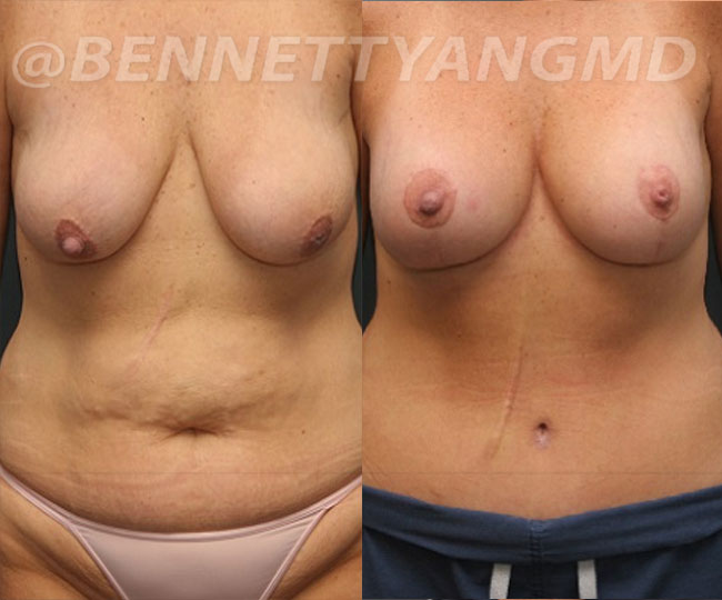 yang-mommy-makeover-patient4-before-after-front