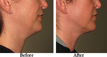 black friday promo $300 off neck skin tightening black friday special