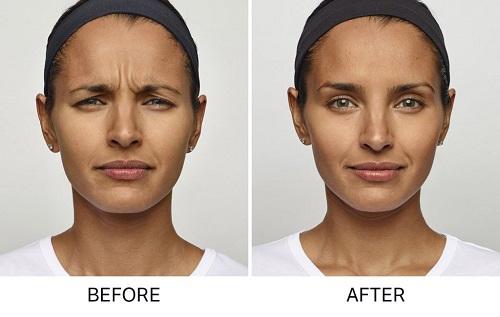 BOGO 50% off Wrinkle Remover Injections