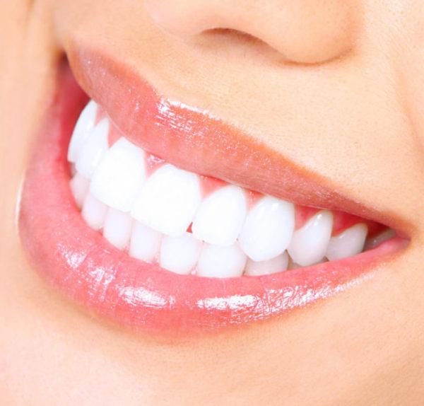 Teeth Whitening - Dentist Troy