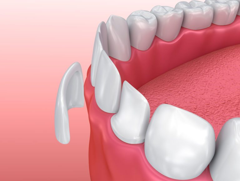 Dental Veneers: Porcelain Veneer installation Procedure. 3D illustration