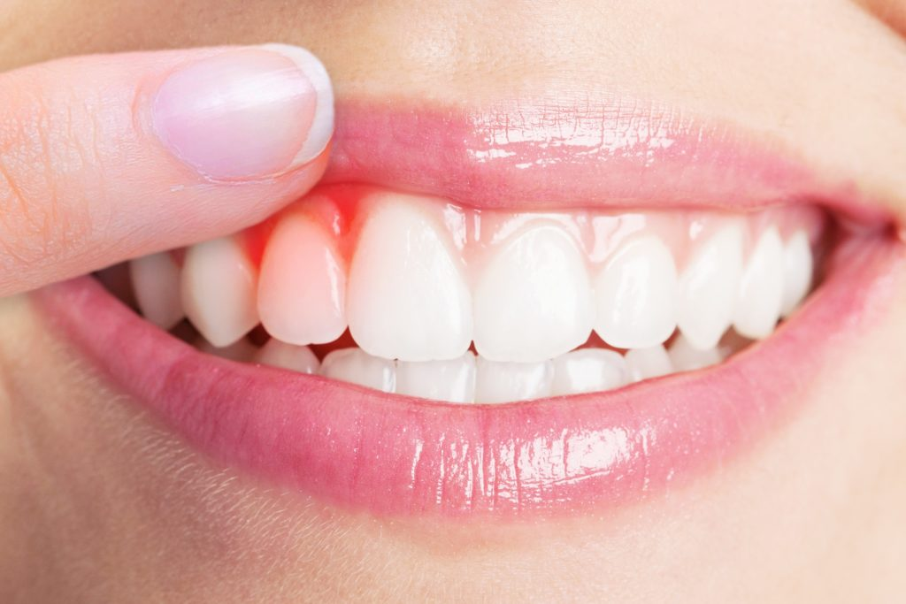Small smile with a finger lifting the upper lip and pointing to red, irritated gums on the left side
