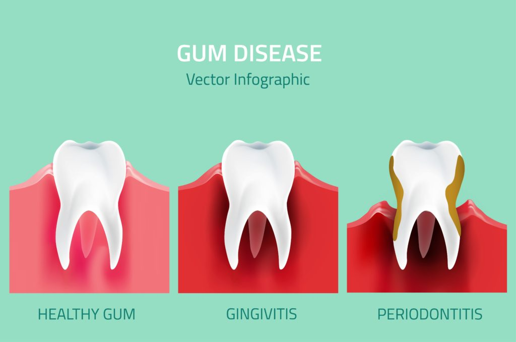 illustration of three teeth: one is a healthy tooth, one is mildly affected by gingivitis, and the last one is severely affected by periodontitis