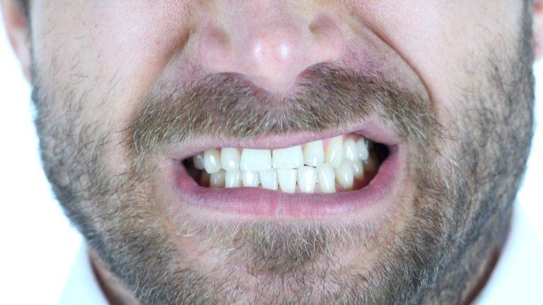 Man grinding/clenching his teeth
