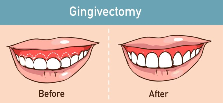 Gingivectomy