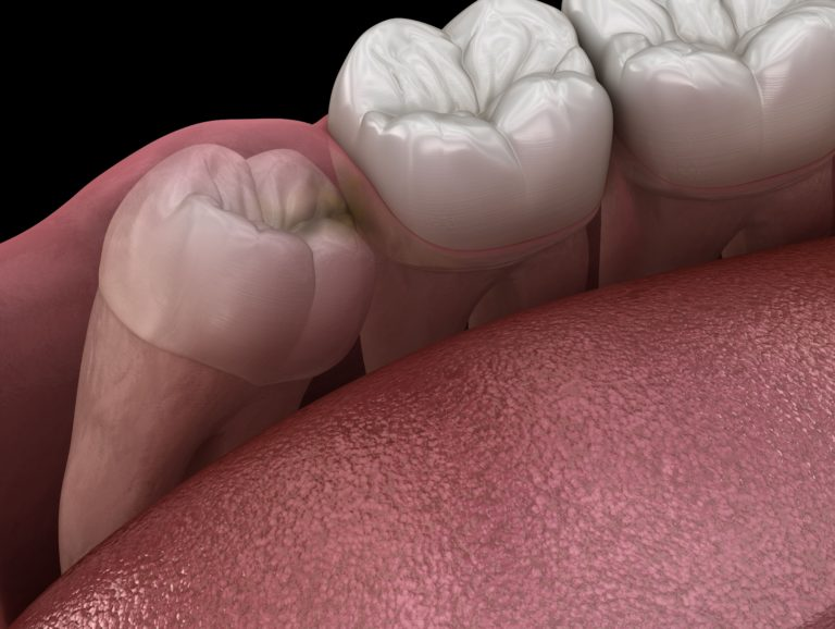 computerized image of an impacted wisdom tooth