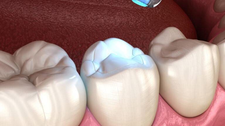 Image of Dental Resins