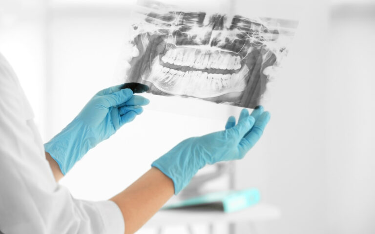 What Are Dental X-Rays?