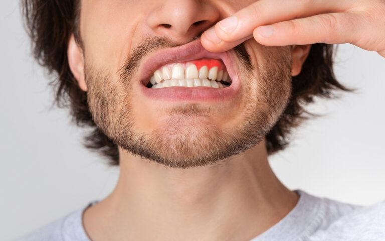 Man Revealing Gums Looking For Periodontal Disease