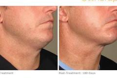 ultherapy-0128m_before-180daysafter_lower