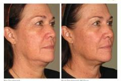 ultherapy-0236l-r_before-90daysafter_full
