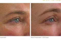 ultherapy-024g-002u_before-120daysafter_brow