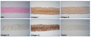 An aseptically processed, acellular, reticular, allogenic human dermis follow-up study