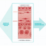 Aseptically Processed Placental Membrane Improves Healing of Diabetic Foot Ulcerations: Prospective, Randomized Clinical Trial