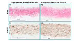 Acellular reticular allogenic human dermis vs SOC in DFU