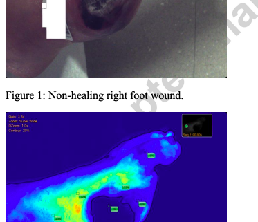 Fluorescence Angiography in Lower Extremity Ulcers in Patients with Peripheral Arterial Disease