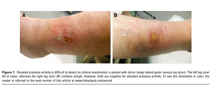 Development of a Novel Technique to Collect Proteases from Chronic Wounds