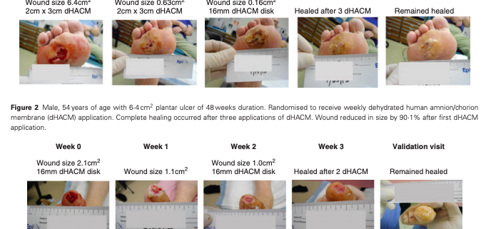 A Prospective Study of Weekly Vs. Biweekly Application of Amnion Membrane Allograft for DFU