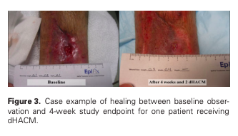 A multicenter, randomized, controlled clinical trial evaluting the use of dehydrated human amnion and multilayer compression therapy in treatment of VLU
