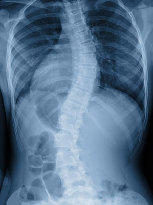 neuromuscular scoliosis, treatment for neuromuscular scoliosis