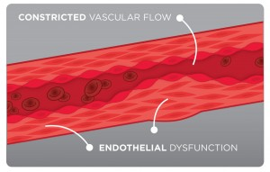 Prime-Nitric-Oxide-Activator-Contricted-Vascular-flow