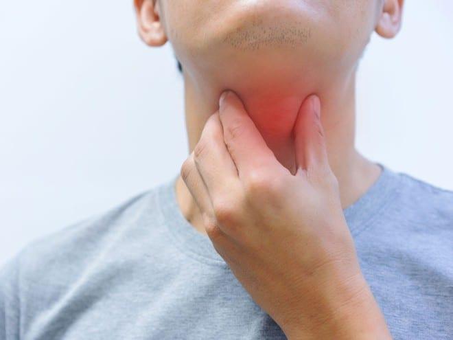 Triệu chứng của bệnh bạch hầu là đau họng, sốt, sưng cổ, có mảng màu xám dày ở họng và amiđan /// SHUTTERSTOCK