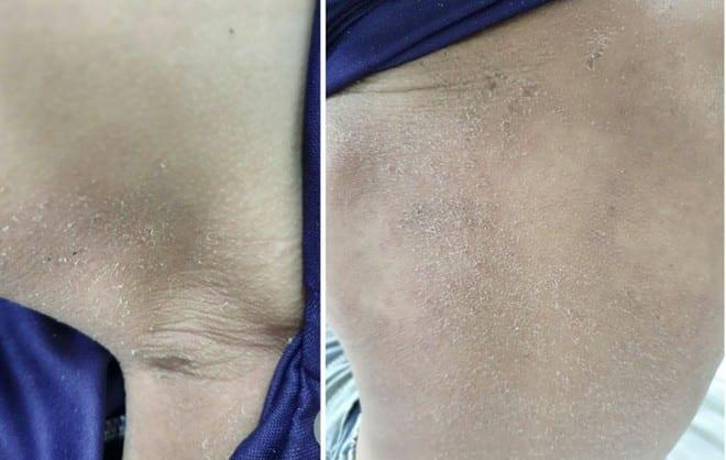 Hội chứng 4S ở trẻ nhỏ gây sẩn đỏ, bong da do vi khuẩn tụ cầu /// Ảnh: Hà Nguyệt