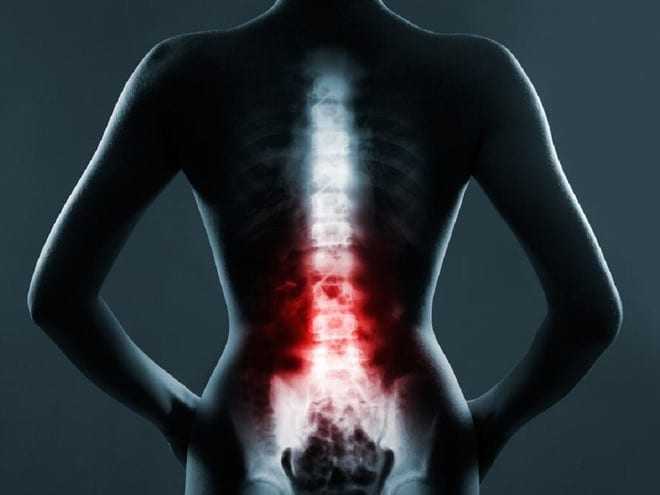 Viêm khớp cột sống gây những cơn đau dọc theo cột sống, mức độ đau sẽ ngày càng tăng /// Ảnh minh họa: Shutterstock