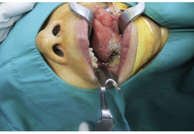 Vết trắng ở lưỡi có thể là dấu hiệu của bệnh ác tính