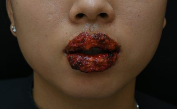 Môi sưng, rỉ mủ khi xăm môi ở thẩm mỹ viện - Ảnh 1.